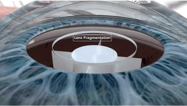 Lens Fragmentation Screen Shot