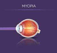 Myopia Illustration
