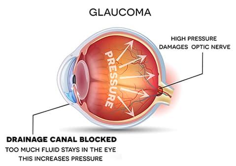 Glaucoma Medical Illustration